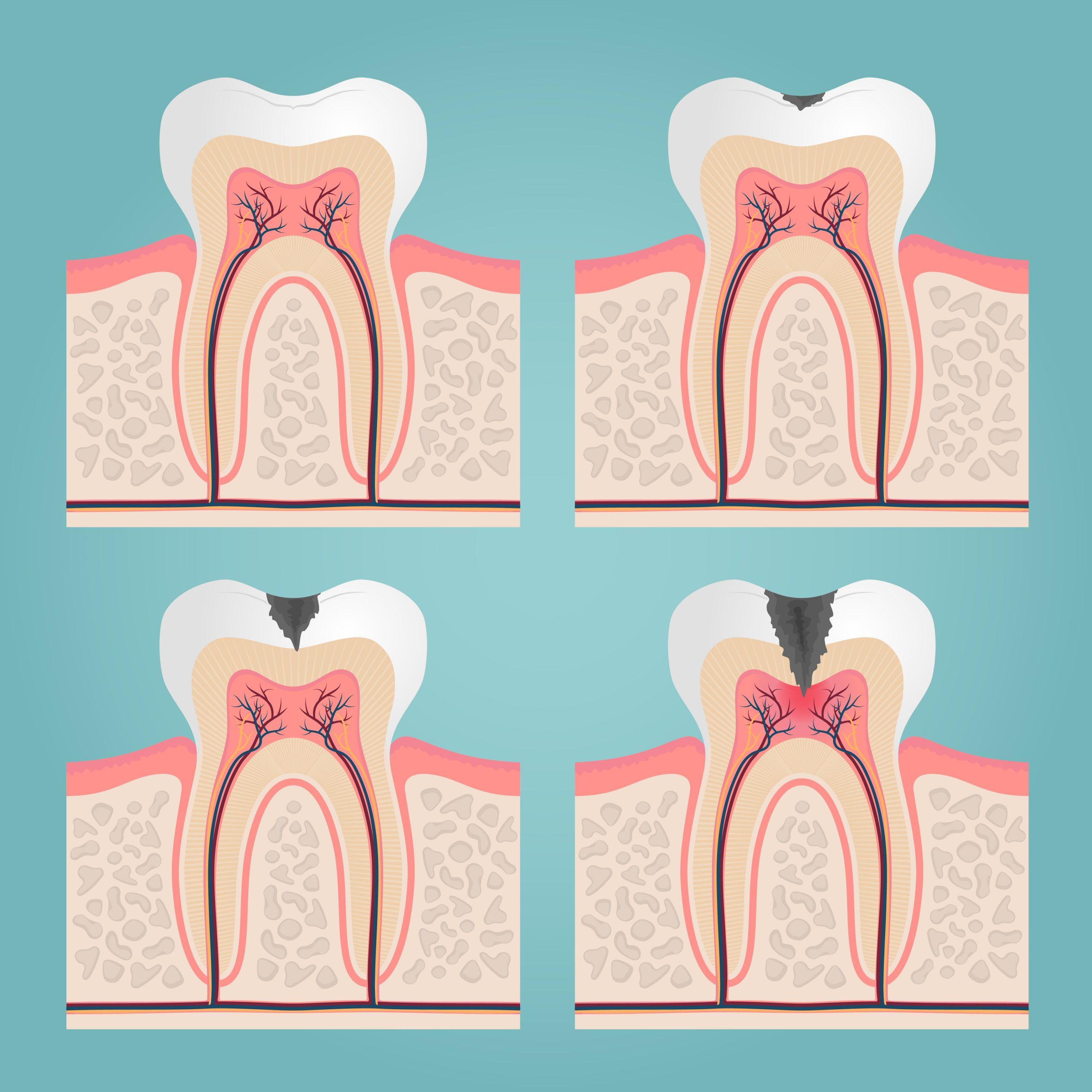 روند پوسیدگی و رسیدن پوسیدگی به فضای ریشه دندان - کلینیک دندانپزشکی صدف فردیس
